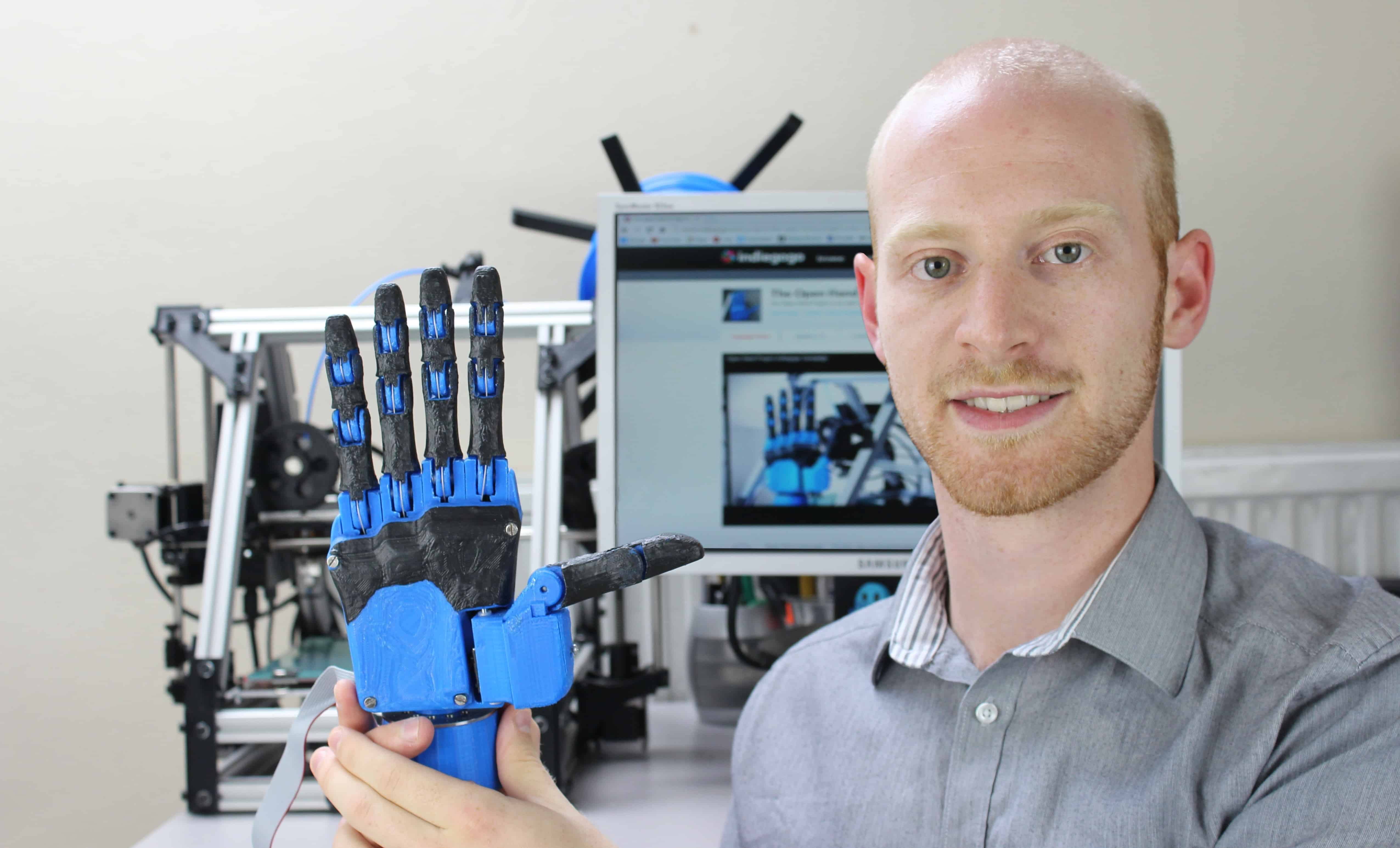 Joel Gibbard, founder of bristol-based robotics company openbionics holds a prosthetic hand