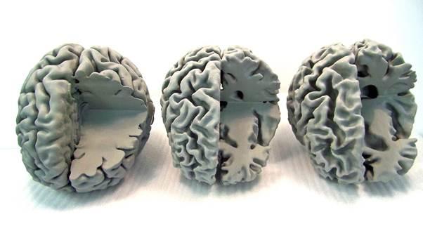 3D-printed brains reveal Alzheimer's secrets